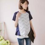 Open PO 5 – Lace Breastfeeding T-shirt